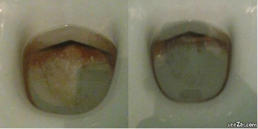 acide citrique nettoyage wc