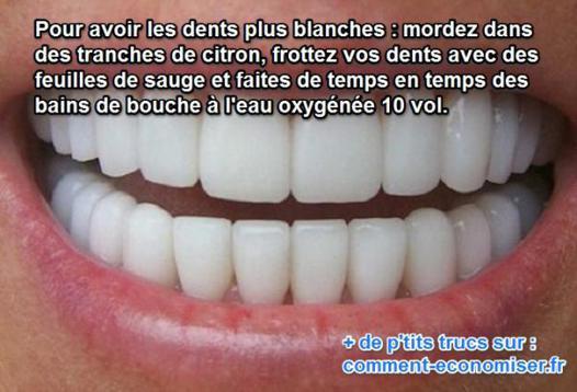astuce pour des dents blanches