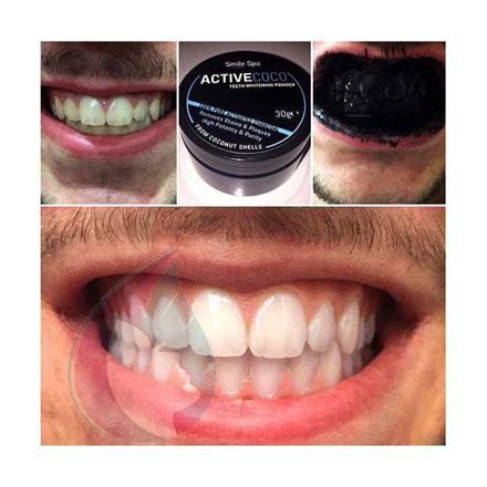 charbon noir pour les dents
