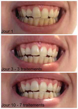 charbon vegetal pour les dents