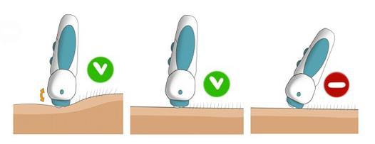 comment utiliser un épilateur électrique