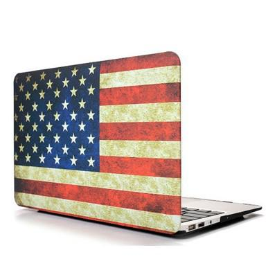 coque macbook air 13 personnalisable