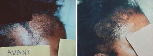 defrisage chute de cheveux