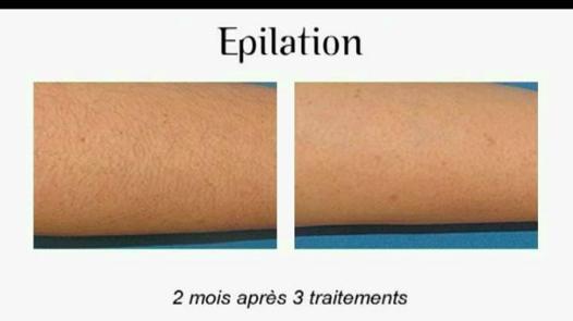 epilation des bras