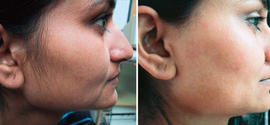 epilation duvet visage femme