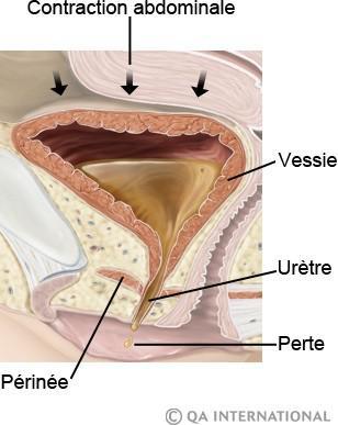 fuite urinaire après accouchement